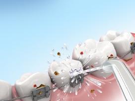 Burnos higienai namuose ir kelionėje