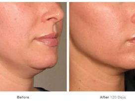 Išgydysime Jūsų odos problemas! - nuotraukos Nr. 5