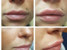 Lupų putlinimas su Princess,su Juvederm 1,0ml-180€