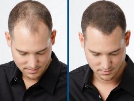 Nuo plaukų slinkimo Kirkland Minoxidil 5% Regaine