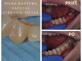 Dantų protezavimas Perkūnkiemyje. Akcija implantui