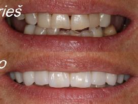 Dantų implantacija nuo 400 eur. Protezavimas