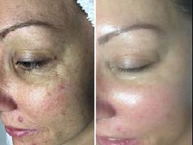 Išgydysime Jūsų odos problemas! - nuotraukos Nr. 2