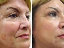Išgydysime Jūsų odos problemas! - nuotraukos Nr. 4
